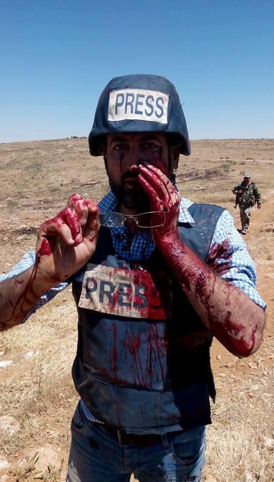 Syrian-journalist-injured